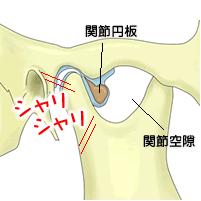 円 は と 関節 板